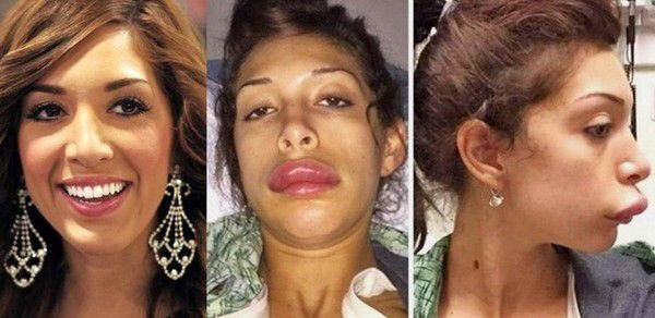 A cirurgia estética nos problemas estéticos de nascimento