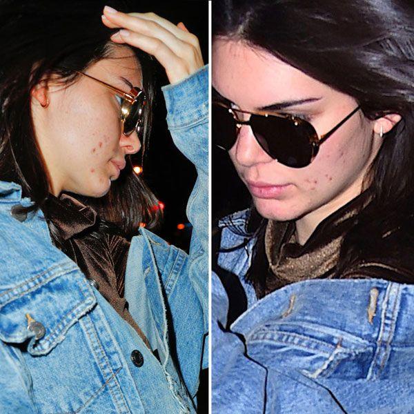 Kendall Jenner, com 21 anos, ainda sofre de problemas com acne