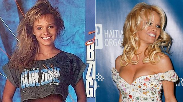 Pamela Anderson admite vício em cirurgia plástica