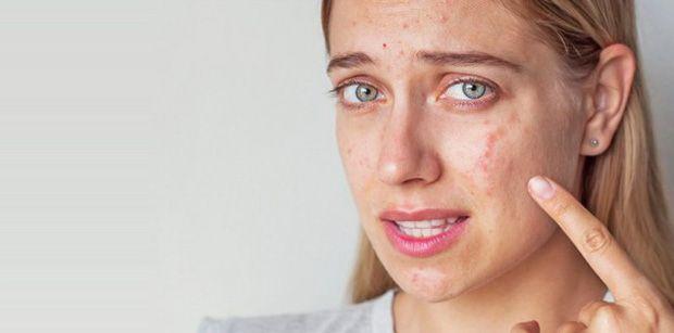 Acne: o que é, causas e tratamentos