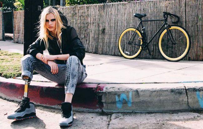 A modelo Lauren Wasser perderá a segunda perna