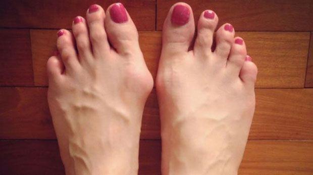 Estas são as 7 razões para não usares sapatos sintéticos