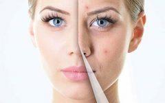 5 sugestões eficientes para eliminar a acne