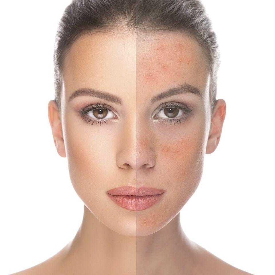 5 dicas para prevenir o acne na idade adulta
